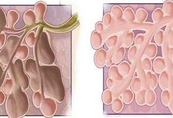 Enfisema – che cos'è? Cause, sintomi e metodi di trattamento