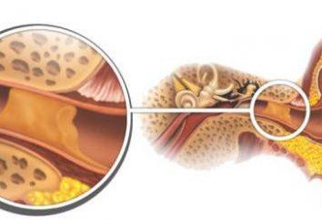 Zolfo nell'orecchio: quando la norma si trasforma in patologia