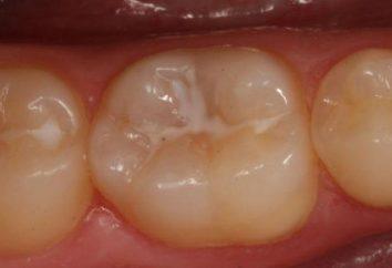 Classificação das cáries dentárias. Tipos e classificação de cárie dentária em crianças