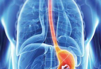 Mięśniak żołądka: przyczyny, objawy, leczenie i chirurgia