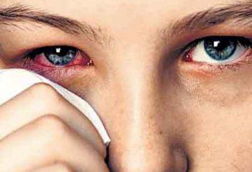 Jak wyciągnąć drzazgę z oka sejfie