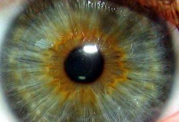 couleur de l'iris, les taches, la maladie