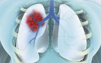cancro al polmone periferico: fase, il trattamento, la storia medica. polmone periferico quota di cancro