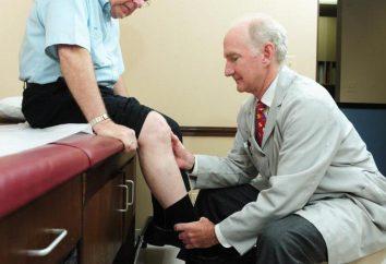 Choroba zwyrodnieniowa stawu kolanowego stopnia 1: leczenie i profilaktyka. Endoproteza. fizjoterapia