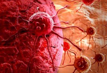 O que é câncer metastático? Os tumores malignos e metástases
