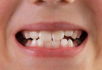 Mobilność ząb: stopień, przyczyny, leczenie