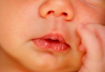 Scoperto un blister sul labbro di un neonato? Niente panico!