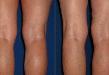 La hinchazón del pie izquierdo