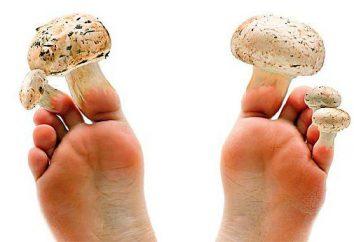Który lekarz traktuje grzyb paznokieć na nogach – mikologa lub dermatologa?