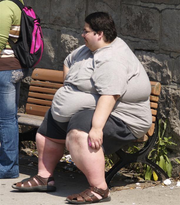 l'obésité morbide - un Types d'obésité. Le traitement
