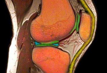 Rozdarty łąkotki stawu kolanowego: objawy, zdjęcie, leczenie bez operacji, konsekwencje. Pęknięcie łąkotki przyśrodkowej stawu kolanowego: leczenie