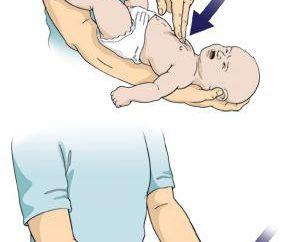 ¿Qué pasa si el niño se está asfixiando? primeros auxilios