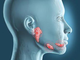 inflammation sous la langue