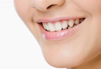 Qu'est-ce qui se passe si vous ne traitez pas vos dents? Maux de dents – comment soulager la douleur