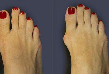 Le traitement de l'hallux valgus du gros orteil: égaliseur, fonctionnement et autres traitements