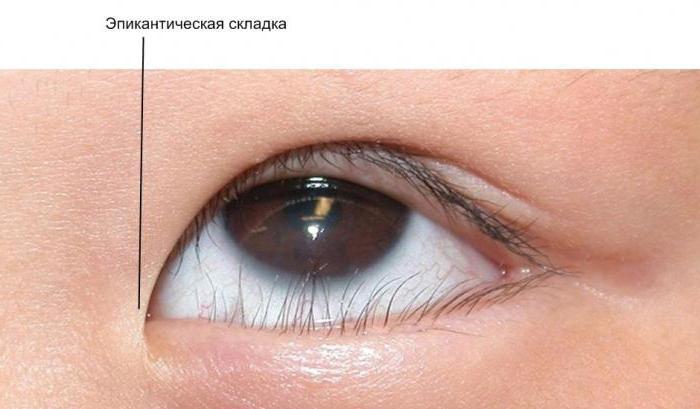 plisser les yeux
