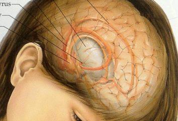 tumeur du cerveau: les symptômes à un stade précoce. Les premiers signes d'une tumeur au cerveau