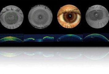 Lo que es ópticos ojos tomografía de coherencia?