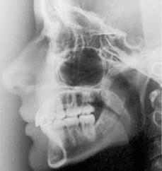 Quando cresce denti del giudizio? Quanti anni erano di solito crescere i denti del giudizio?