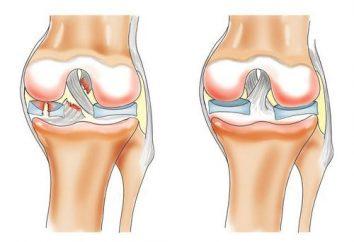 Arthrose du genou: le traitement à la maison. Le traitement de l'arthrose des remèdes populaires du genou