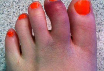 dedo del pie roto: Síntomas y métodos de tratamiento