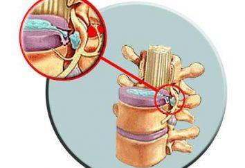 Leczenie przepukliny kręgosłupa: podstawowe techniki