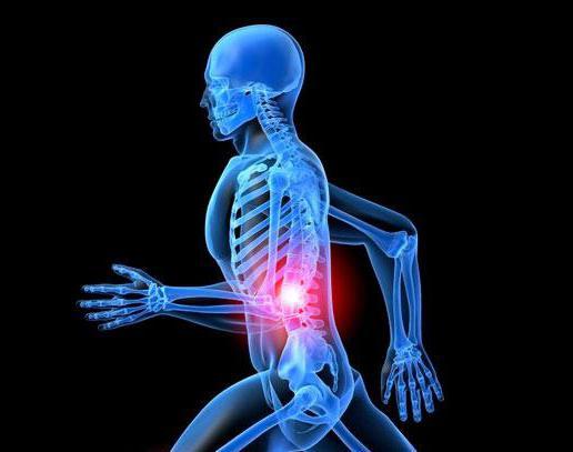Salbe aus neuralgie und osteochondrose
