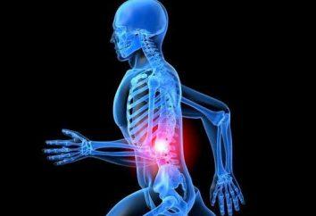 Was ist vorgeschriebene Salbe mit Interkostalneuralgie für die Behandlung?