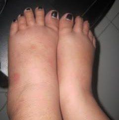 Por que à noite são os pés inchados?
