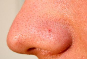 Niektóre choroby skóry ludzkiej