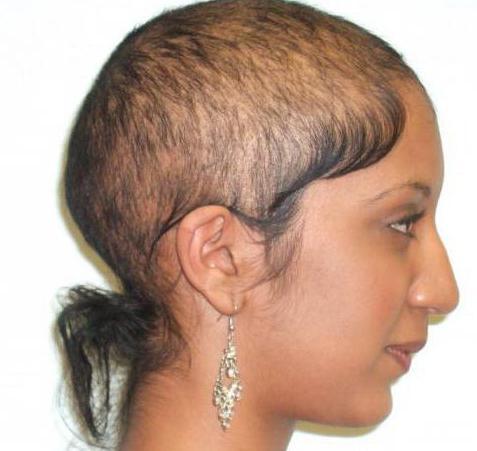gibt es eine heilung androgenetische alopezie ursachen. Black Bedroom Furniture Sets. Home Design Ideas