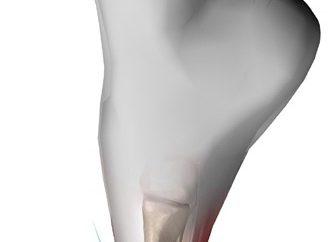 Zapalenie stawów dużych palcach: objawy i leczenie