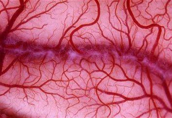 Układowe zapalenia naczyń: objawy i leczenie. Zapalenie naczyń – co to za choroba?