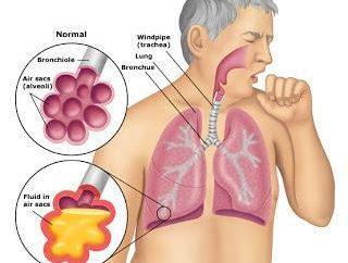 pneumonies interstitielles: causes, le traitement, les complications