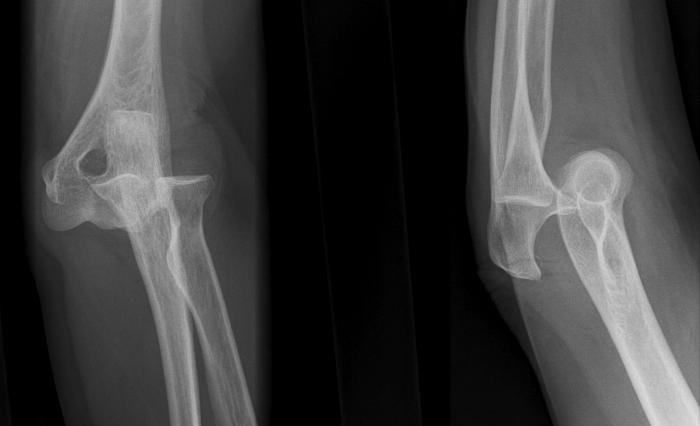 Schädigung der knie- und dislokationen 2017. Knieverletzung: Folgen
