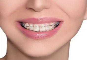Male ho messo tra parentesi graffe sui denti? Panoramica della procedura
