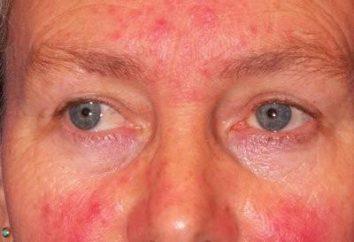 Quel devrait être le traitement de la démodécie sur son visage?