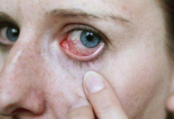 Gusanos en los ojos: Causas y el diagnóstico