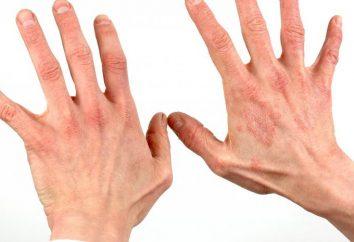 Che cosa è la dermatite? Come curare la dermatite?