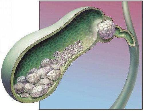 stent gallengang entfernen