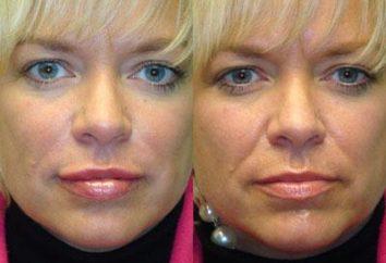Dlaczego dostaję fałdów nosowo-wargowych? Metody korekcji wady wiek