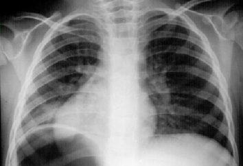 Kaszel jako objaw. Zapalenie płuc czy zimno?