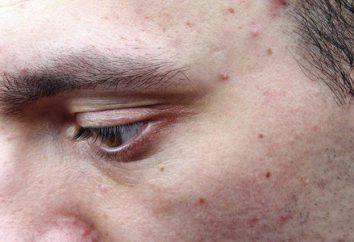 Jak pozbyć się białych plam na twarzy: maski, kremy, porady ekspertów