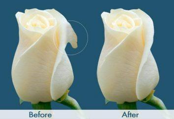 Plastyka: przed i po. Opinie, ceny