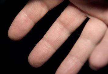 Pourquoi les doigts engourdis sur sa main gauche?