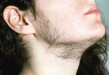Iperandrogenismo nelle donne: cause, sintomi, il trattamento. L'iperandrogenismo pericoloso nelle donne