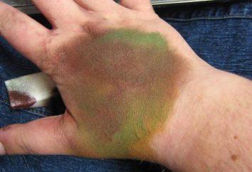 Chemiczne oparzenia skóry: leczenie w domu