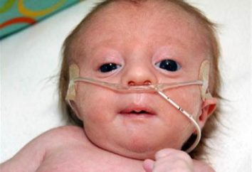 ¿Por qué los niños sufren de síndrome de Edwards?