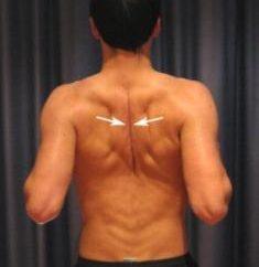 Co może świadczyć o bólu w kręgosłupie między łopatkami?