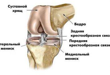 Co to jest MRI stawu kolanowego, jak pokazują MRI stawu kolanowego?